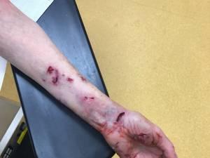 O bătrână din municipiul Suceava a fost sfâşiată de un câine
